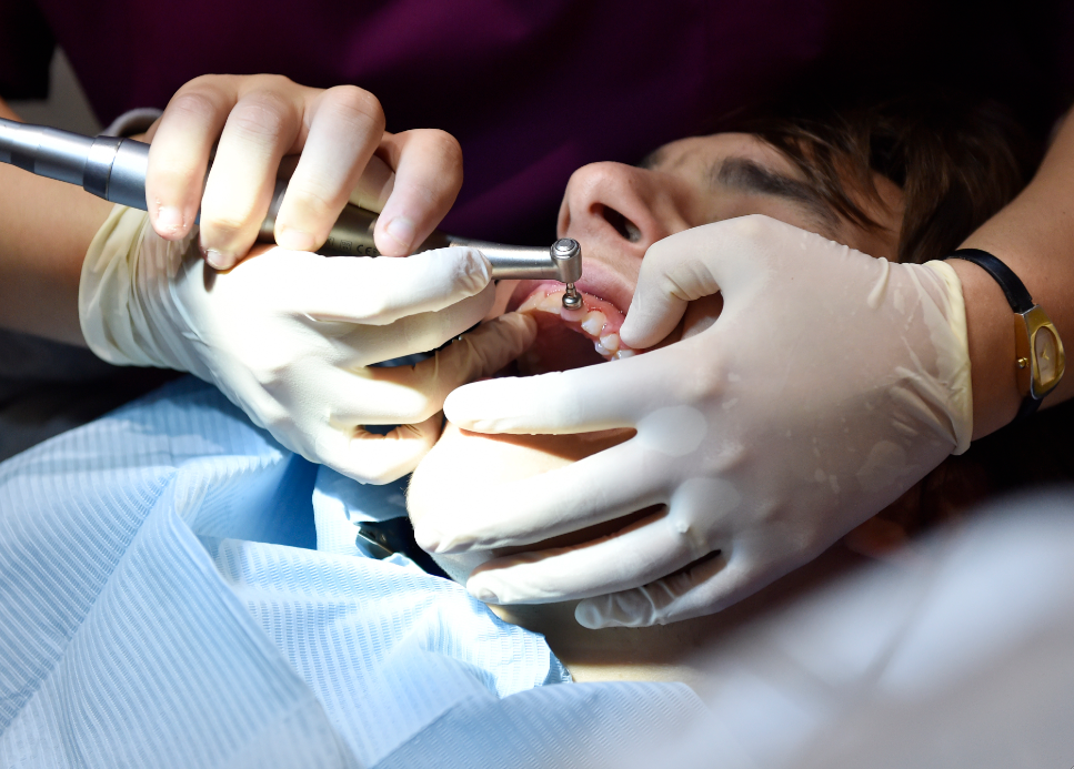 """Dérives à l'ordre des dentistes: """"Au bout du compte c'est le patient et la Sécurité sociale qui payent"""""""